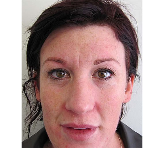 Botox bandit Woman flees after stealing Botox services